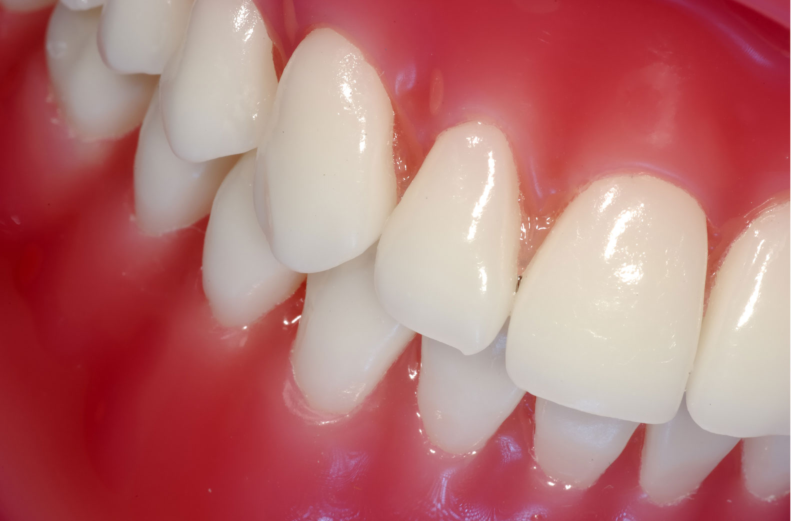 Rejuvenate Your Smile with Porcelain Veneers - Dentist in