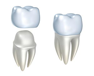 Dental Crown Diagram